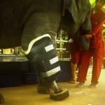 地雷で足の一部を失ったゾウのために義足を製作